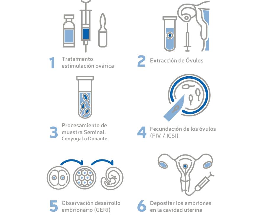 Tratamiento de fecundación in vitro